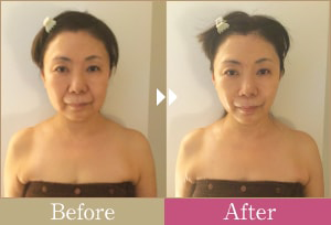 女性の施術前後の画像
